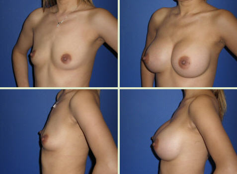 breast augmentation michigan