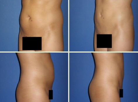liposuction before and after photos of a patient from michigan
